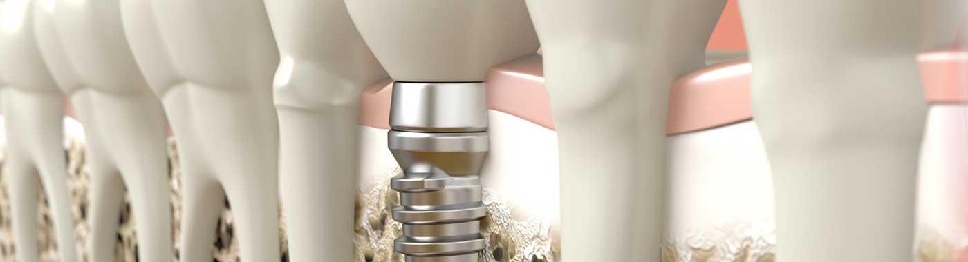 implantologia-centro-dentistico-sarca