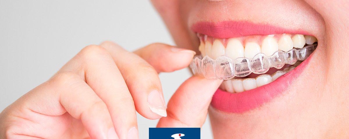 ortodonzia invisibile centro dentistico sarca