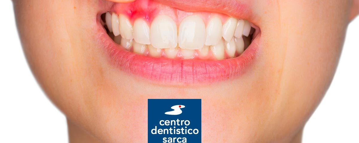sanguinamento gengive centro dentistico sarca